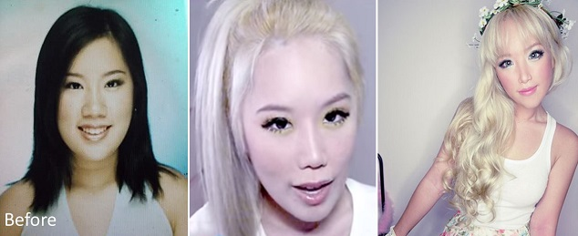 Xiaxue-plastic-surgery-transformation